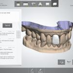 TRIOS-scanning-software-768x614