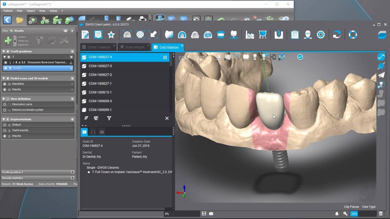 codiagnostix-implant-planning-software-2