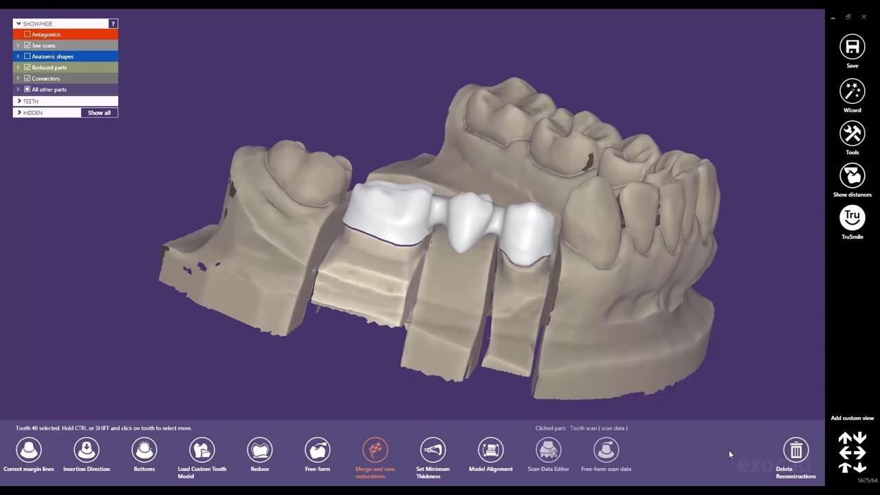Exoplan crack full version - dentalcrack com