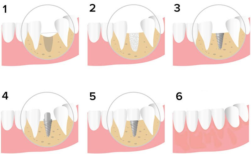 Stages Of Implantation