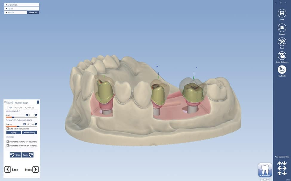 planmeca-plancad-premium-software-design-dental-prosthetics